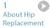 Hip Replacement - About